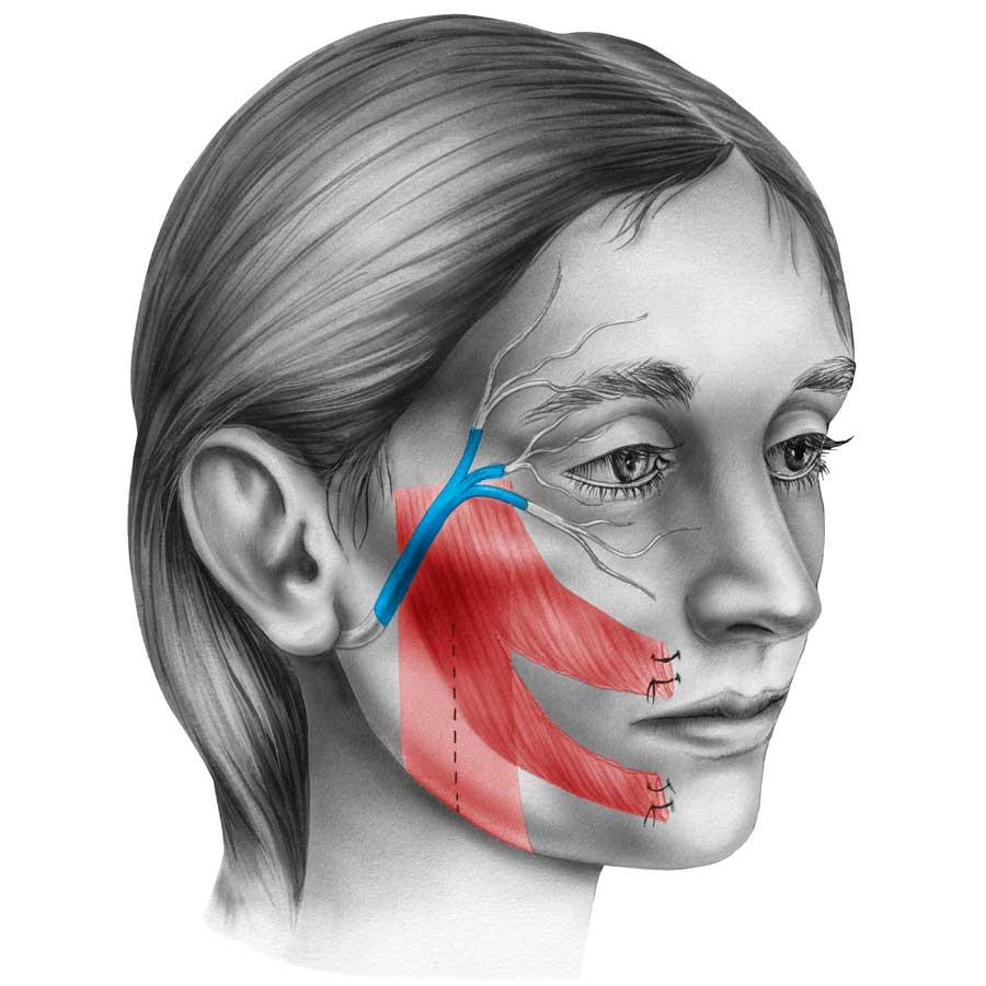 Botox Treatement