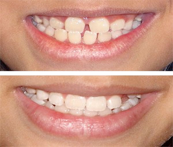 Cosmetic Dentistry Before and After 3