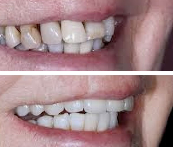 Cosmetic Dentistry Before and After 1