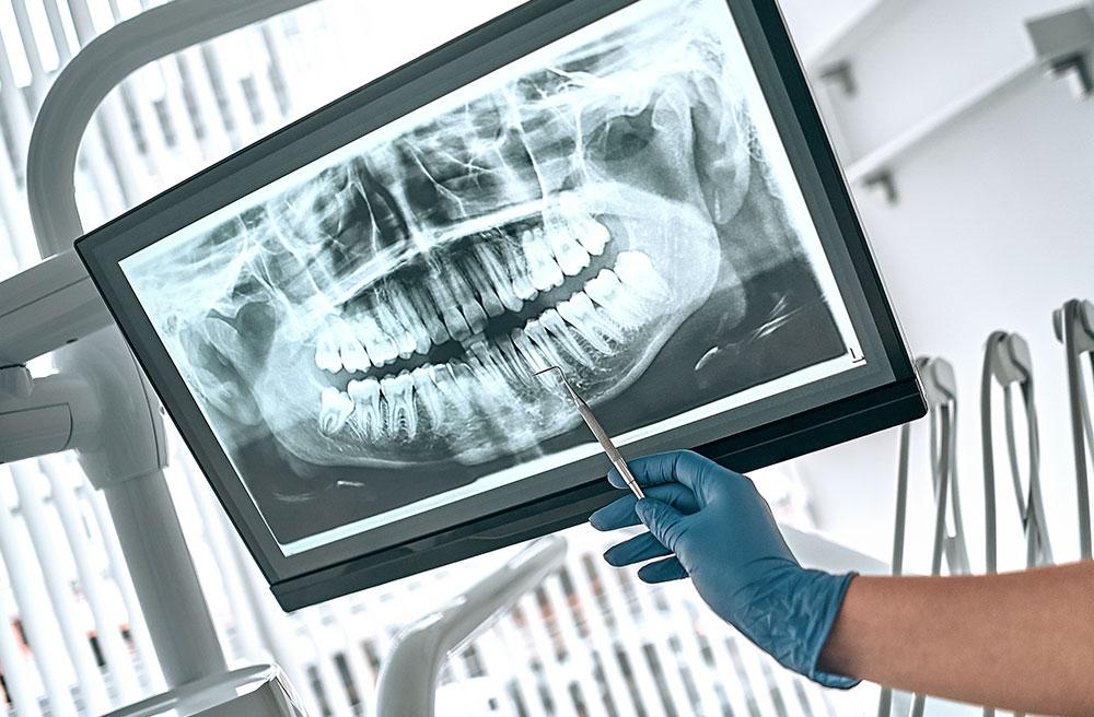 Dental Exam of X-ray