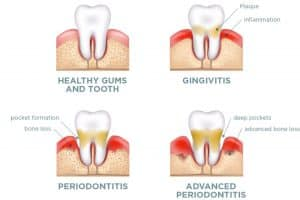Gum Disease Bone Loss
