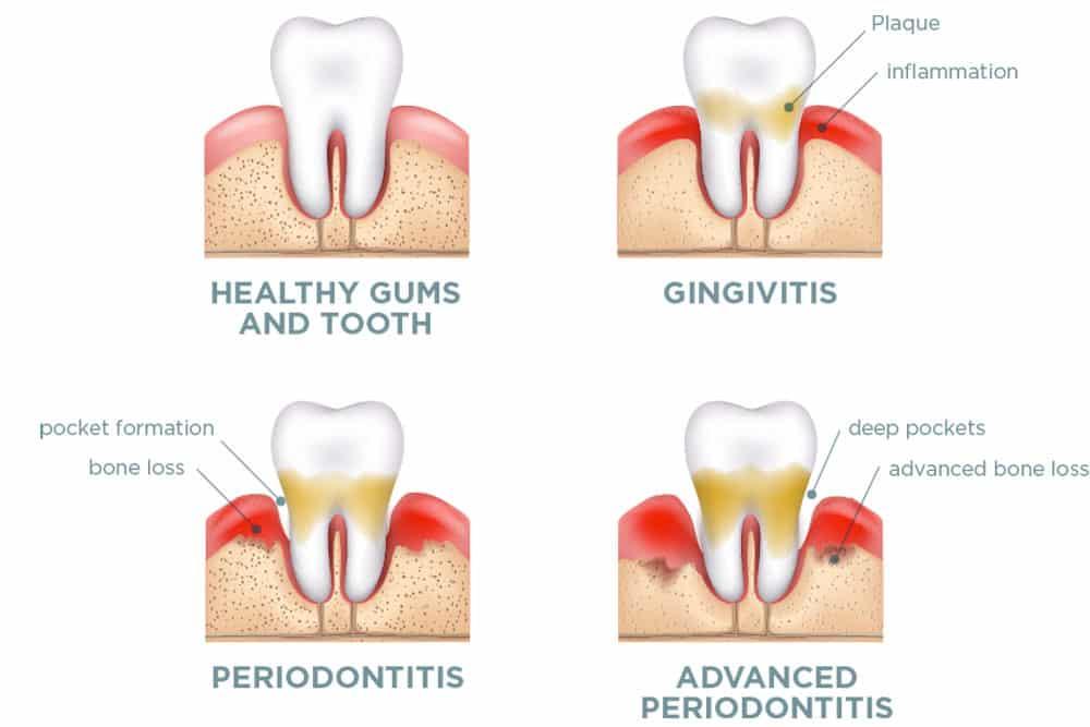 Gum Disease Bone Loss