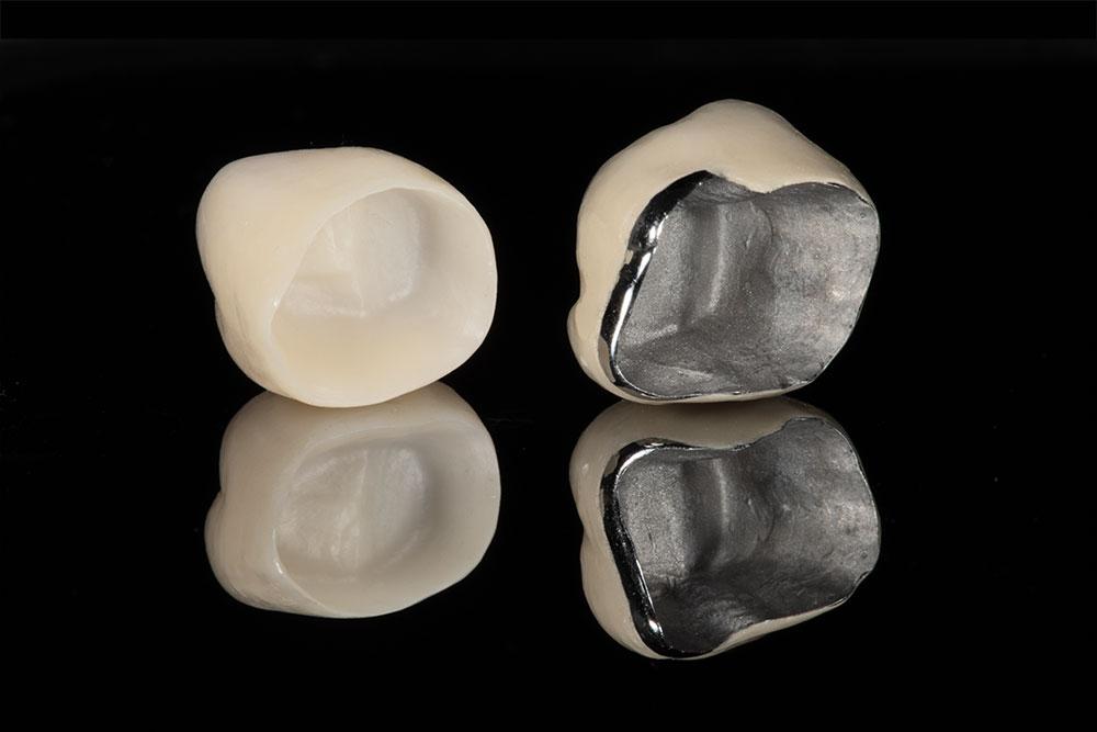 Porcelain vs Metal Dental Crowns
