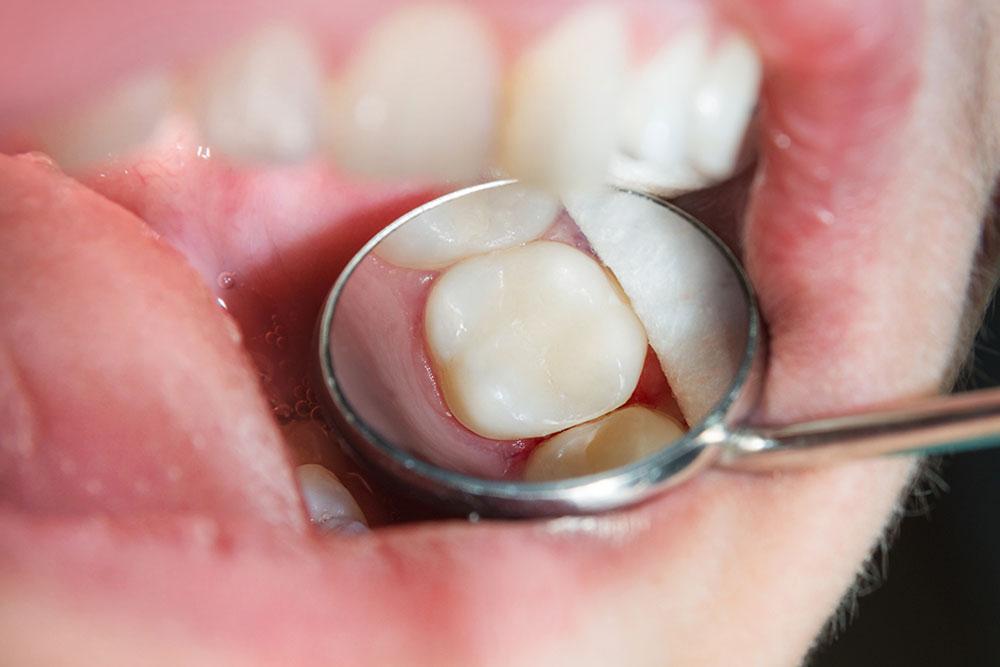 Dental Fillings Procedure