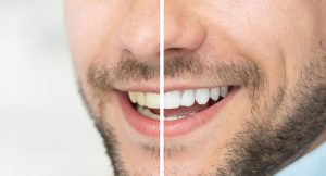 Cosmetic Dentistry Teeth Whitening